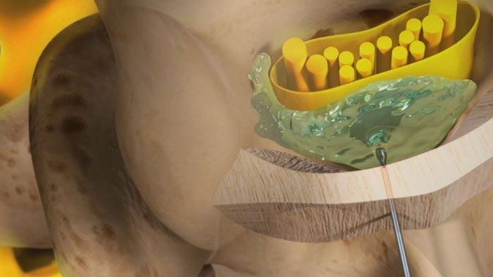 epidural-steroid.jpg